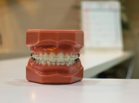 Le bain de bouche et l'appareil dentaire